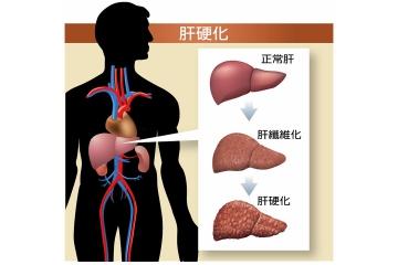 C型肝炎雖然已治癒 原來的肝硬化並不會消失