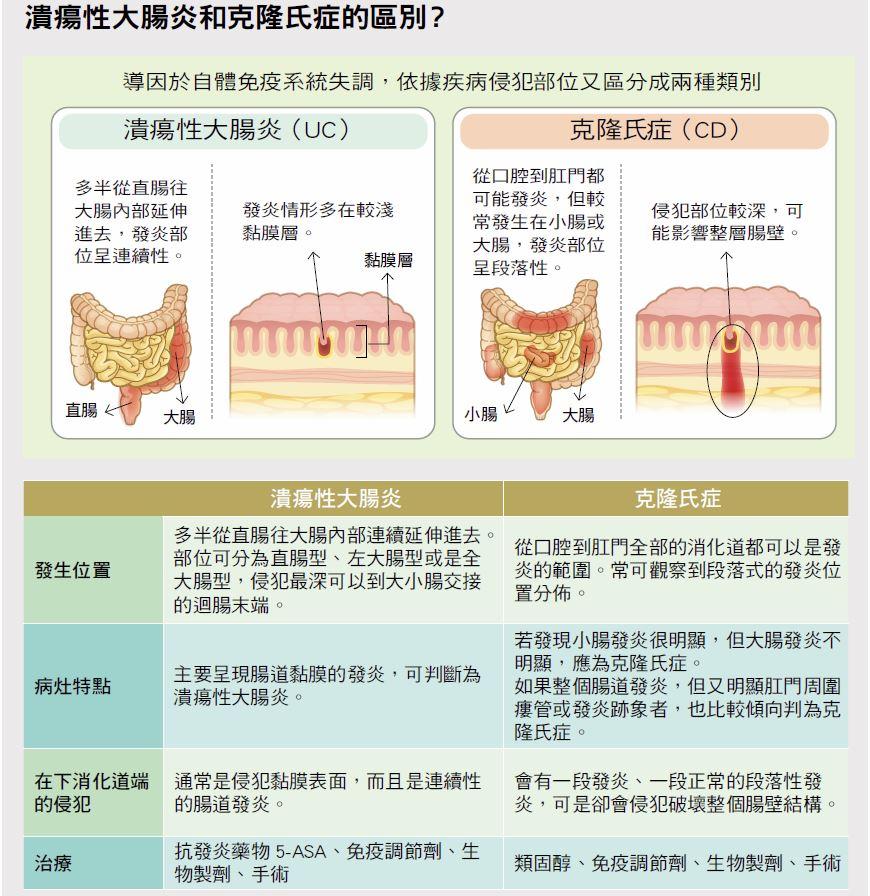 胃腸 感染 炎 性